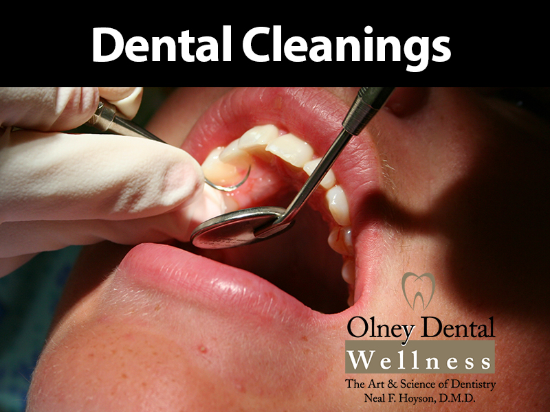 Dental Cleanings Olney Dental Wellness